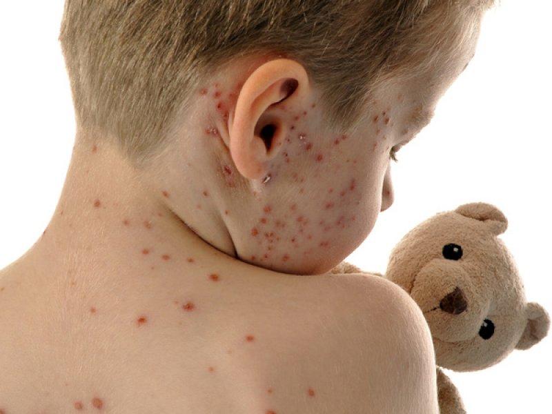 Kinderkrankheiten Windpocken Mamiweb De