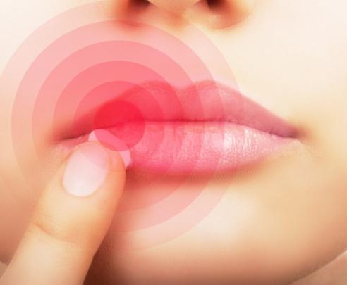 lippenherpes-in-der-schwangerschaft