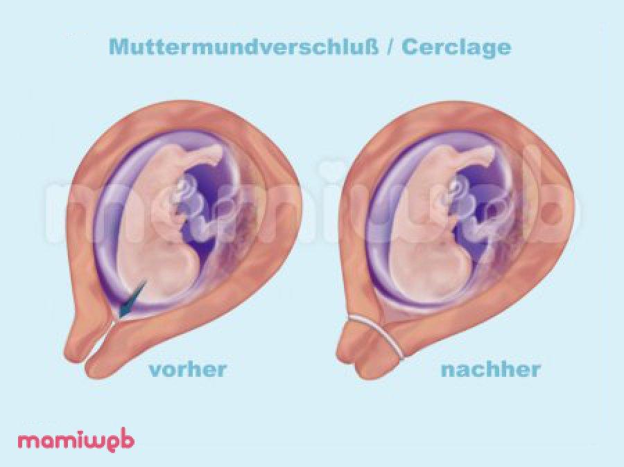 Fein Anatomie Und Physiologie Des Gebärmutterhalses Fotos ...