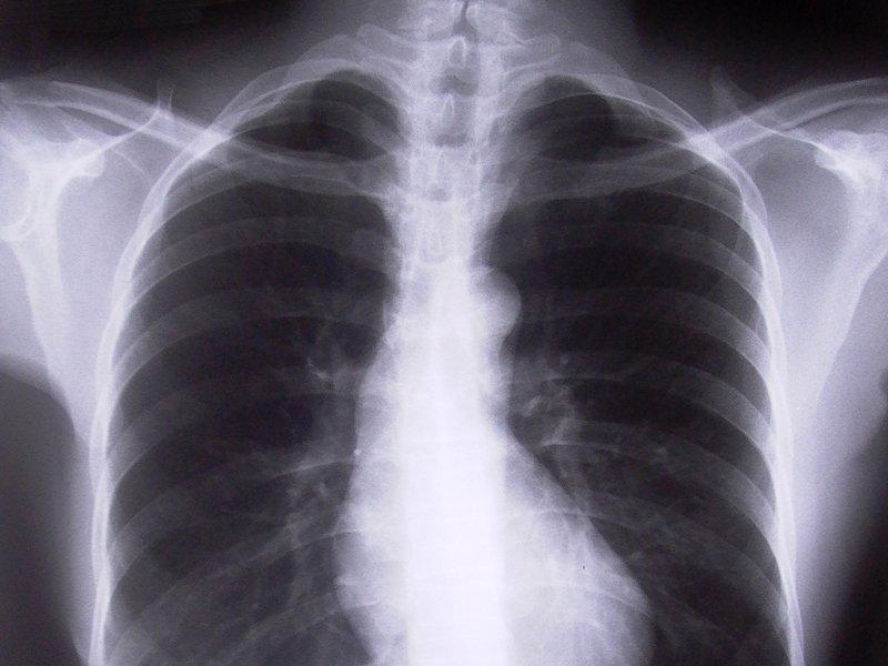 schreien-kraeftigt-die-lunge