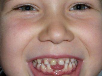 Die Zahnfee kommt nicht auf den Spielplatz